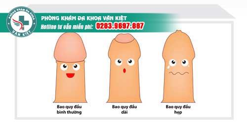 Những biểu hiện hẹp bao quy đầu ở nam giới
