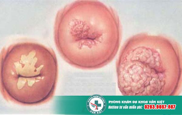 Bệnh viêm lộ tuyến cổ tử cung có lây không?