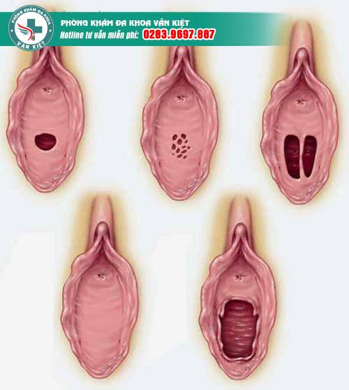 Bạn biết gì về các dạng màng trinh con gái?