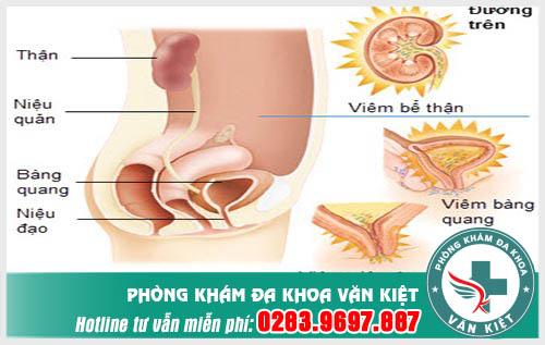 Bệnh viêm đường tiết niệu nguyên nhân, triệu chứng và cách điều trị