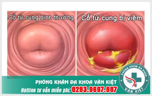 Viêm cổ tư cung có thể biến chứng thành ung thư tử cung