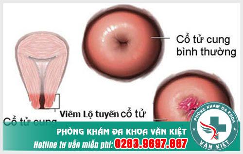 Cách nhận biết sự phát triển qua từng giai đoạn của viêm lộ tuyến cổ tử cung