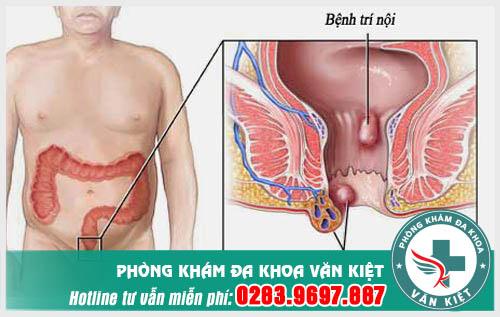 Cách xác định các cấp độ của bệnh trĩ ngoại