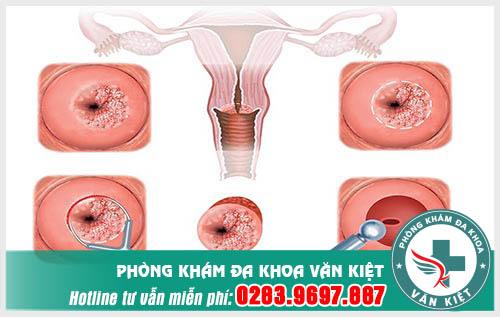 Chữa bệnh viêm lộ tuyến cổ tử cung bằng phương pháp đốt điện có tốt không?