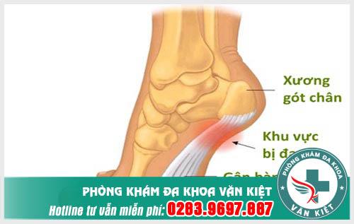 Đau gót chân achilles là gì, cách chữa như thế nào?