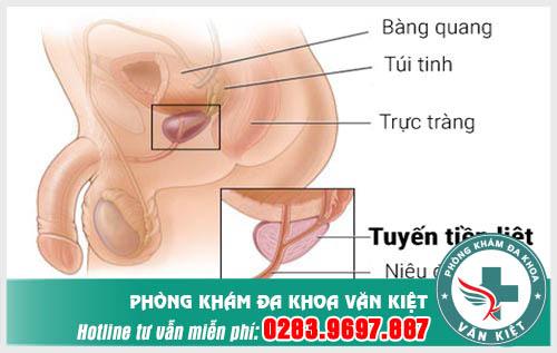 Dấu hiệu cảnh báo viêm tuyến tiền liệt ở nam giới