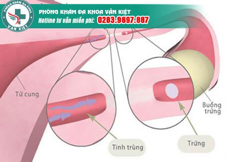 Dấu hiệu tắc ống dẫn trứng ở phụ nữ