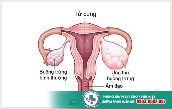 Dấu hiệu ung thư buồng trứng là gì?