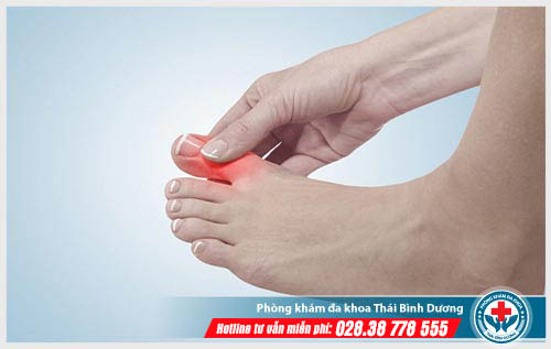 Đau khớp ngón chân cái có phải bị bệnh gút