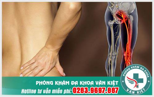 Đau từ mông xuống bắp chân là bị gì?