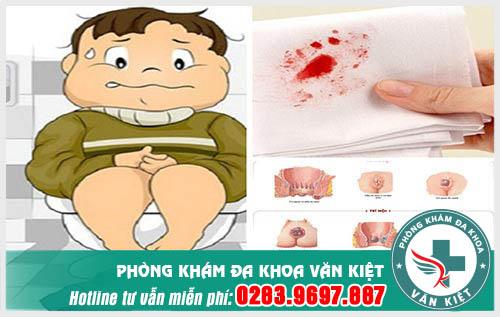 Đi cầu ra máu ở nam giới báo hiệu bệnh gì?