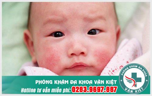 Điều trị sùi mào gà ở trẻ em có khác người lớn không?