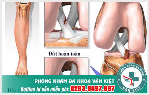 dut-day-chang-cheo-truoc-khong-hoan-toan-la-nhu-the-nao
