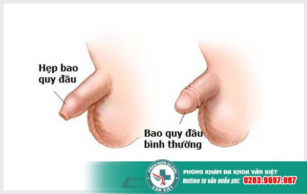 Hẹp bao quy đầu và cách điều trị hiệu quả