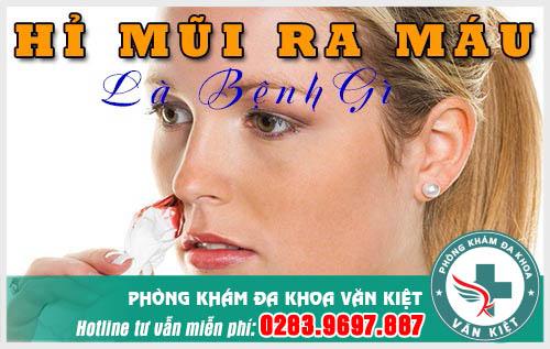 Hỉ mũi ra máu biểu hiện bệnh lý nguy hiểm bạn đừng nên coi thường