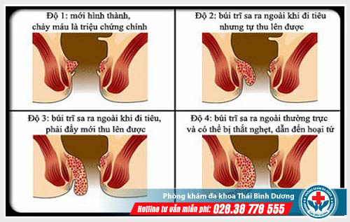 Hình ảnh bệnh trĩ nội qua các giai đoạn