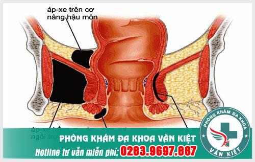 Hình ảnh về bệnh apxe hậu môn