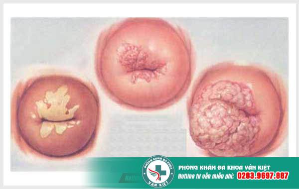 hình ảnh cổ tử cung bị viêm nặng