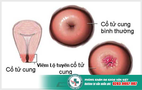 hình ảnh cổ tử cung bình thường