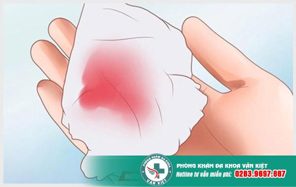 Hình ảnh minh họa cho khí hư màu nâu đỏ