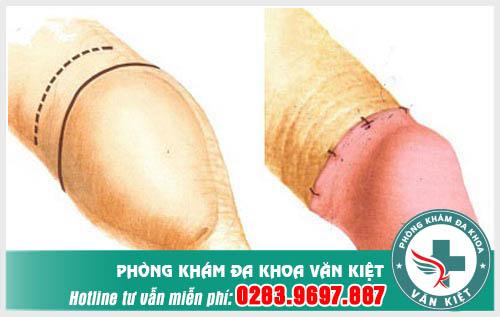 Trước và sau khi làm tiểu phẫu cắt bao quy đầu