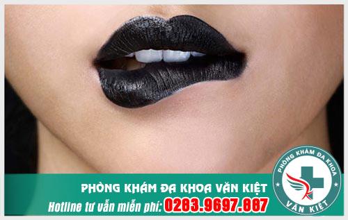 Nguyên nhân gây bệnh lậu ở miệng là gì?