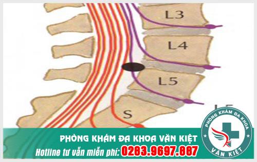 thoat-vi-dia-dem-that-lung-l4-l5-la-gi-trieu-chung-the-nao