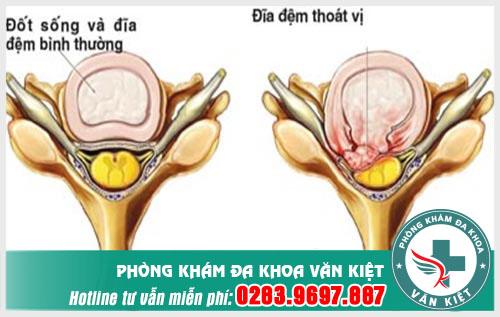 Triệu chứng của thoát vị đĩa đệm cột sống thắt lưng?