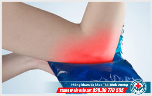 Triệu chứng và cách điều trị đau khuỷu tay
