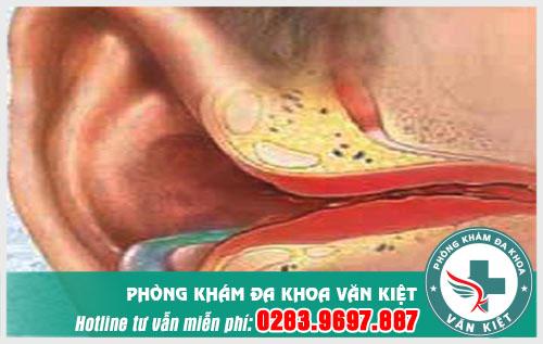 Viêm tai ngoài chảy mủ và cách xử lí
