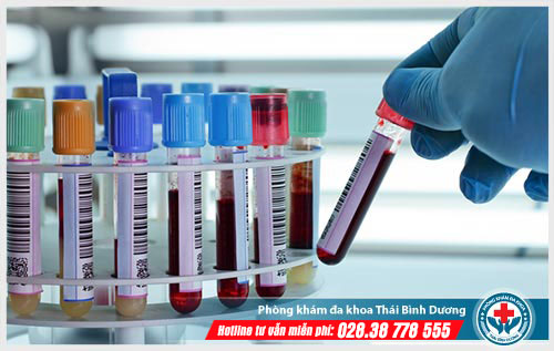 Xét nghiệm bệnh lậu ở đâu chính xác nhất?